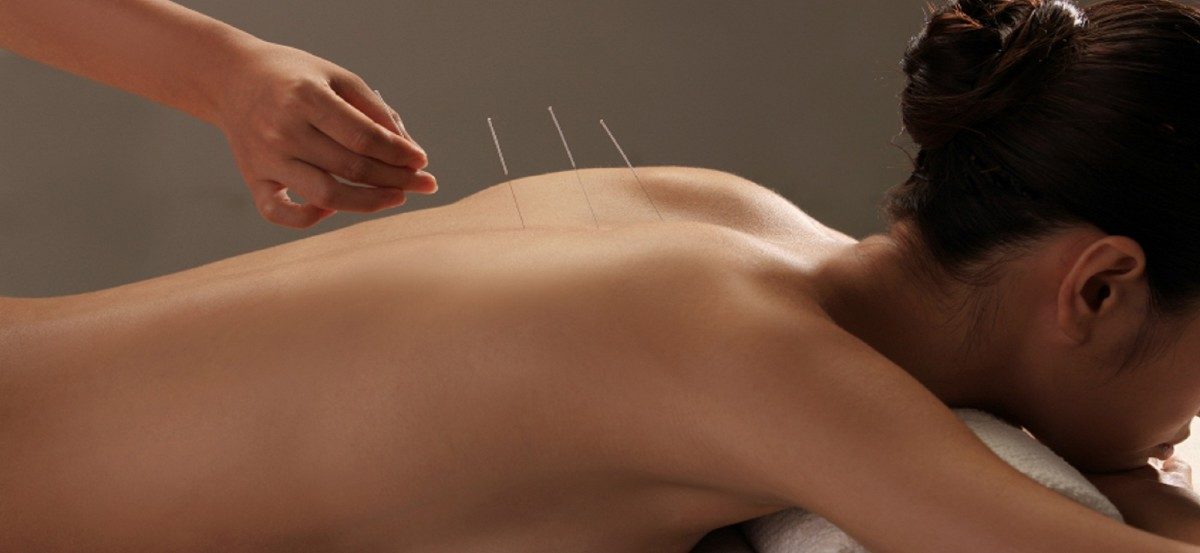 Acupuncture 101: What Is It, and How Is It Helpful?